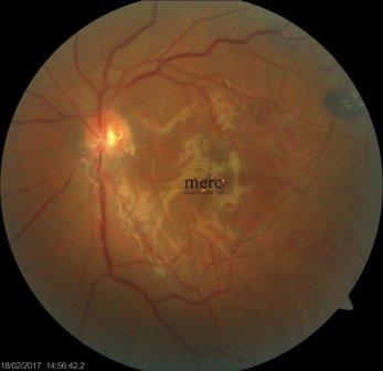 diabetic-retinopathy-treatment
