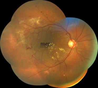 medical-retina - mumbai eye retina clinic