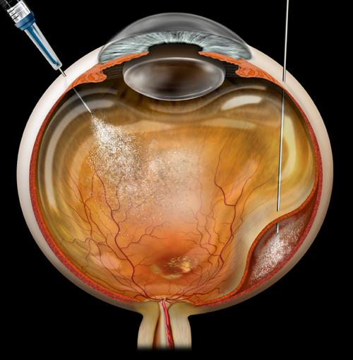 retinal injections - intravitreal injections