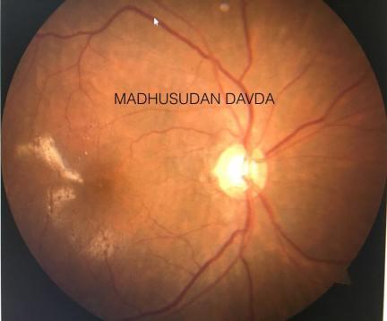 retinal tear - retina specialist in mumbai - mumbai eye retina clinic
