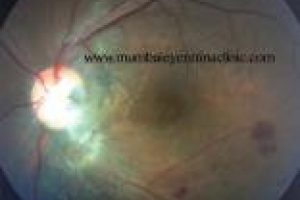 retina specialist in mumbai - mumbai eye retina clinic
