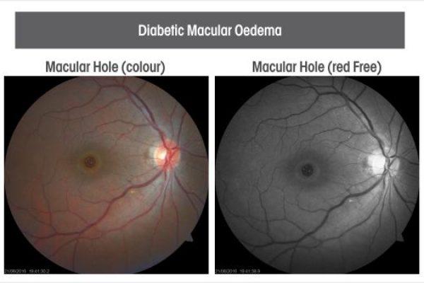 Diabetic-macular-oedema-1