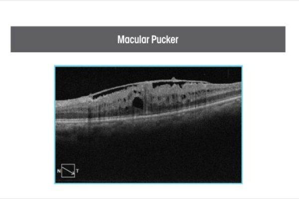 macular-pucker-1