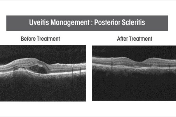 uveitis-management-posterior-scleritis