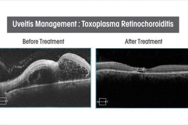 uveitis-management-toxoplasma-retinochoroiditis