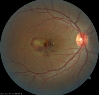 Age Related Macular Degeneration- ARMD