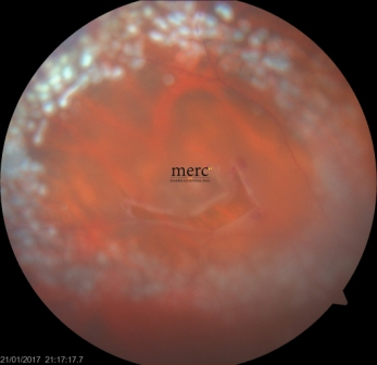 retinal tear - after